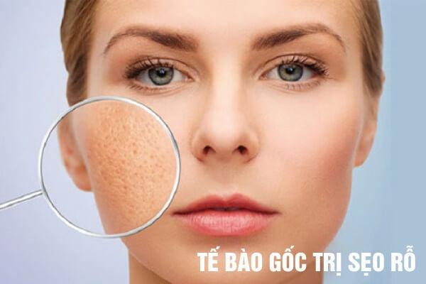 Tế bào gốc GSC trị sẹo rỗ hiệu quả