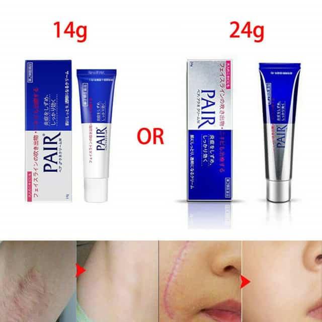 Giá kem trị mụn Pair Acne W Cream