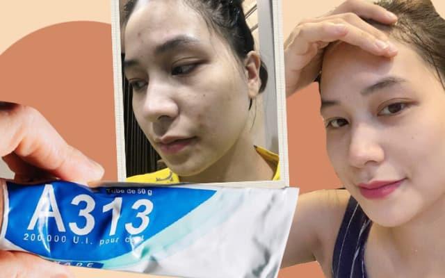 Đối tượng sử dụng kem dưỡng Retinol A313
